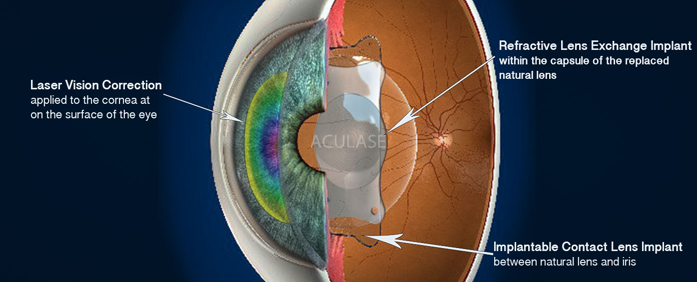 3 types of correction treatments - Laser vision on the cornea, Lens exchange implant in the natural lens position and implantable contact lens in between