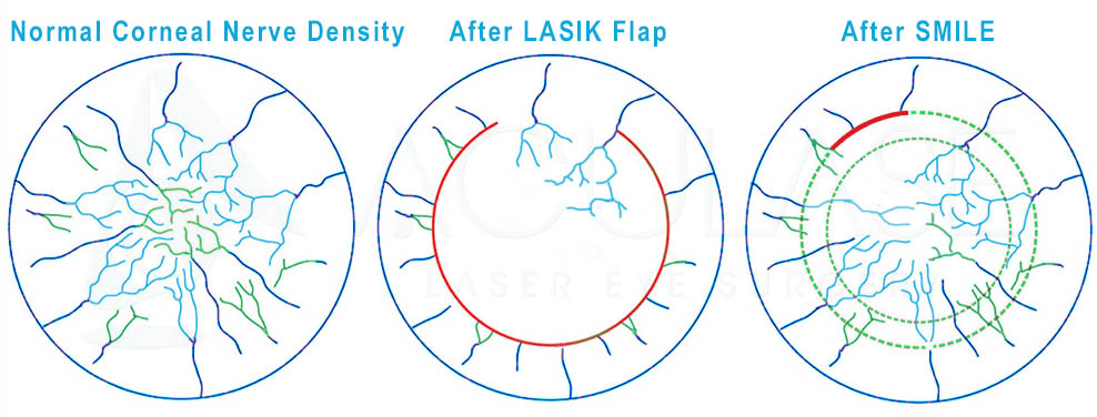 Corneal Nerve density before and after LASIK or SMILE