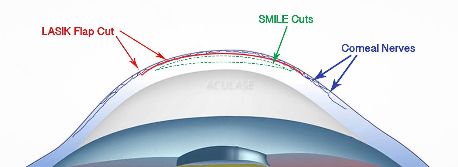 Corneal Nerves and SMILE