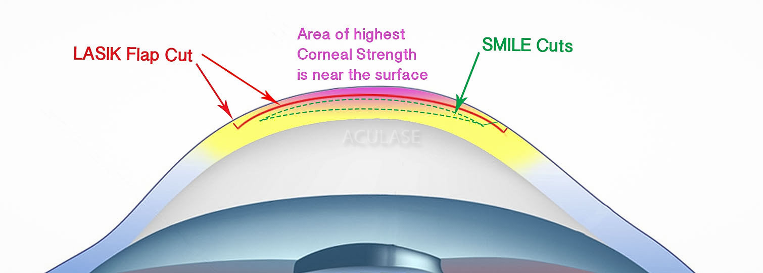 Corneal strength and SMILE