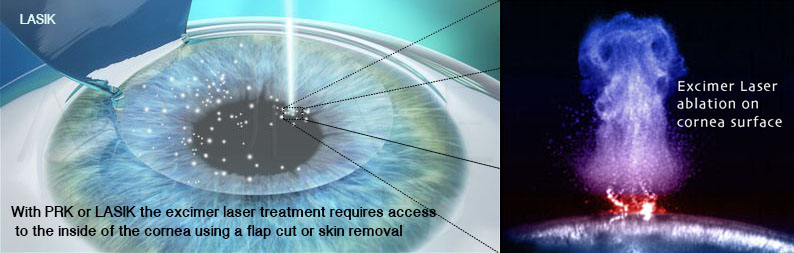 LASIK laser ablation requiring a flap