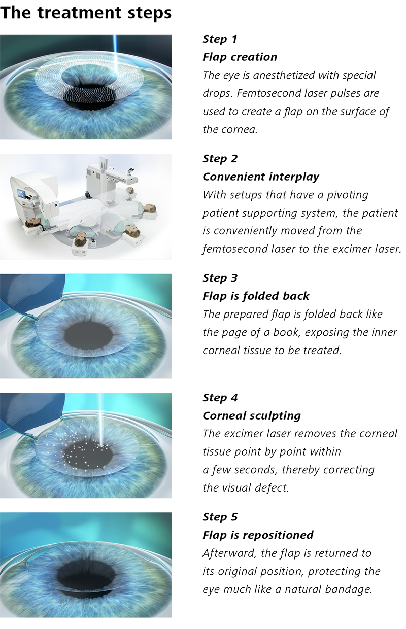 Treatment Steps 2 LASIK small