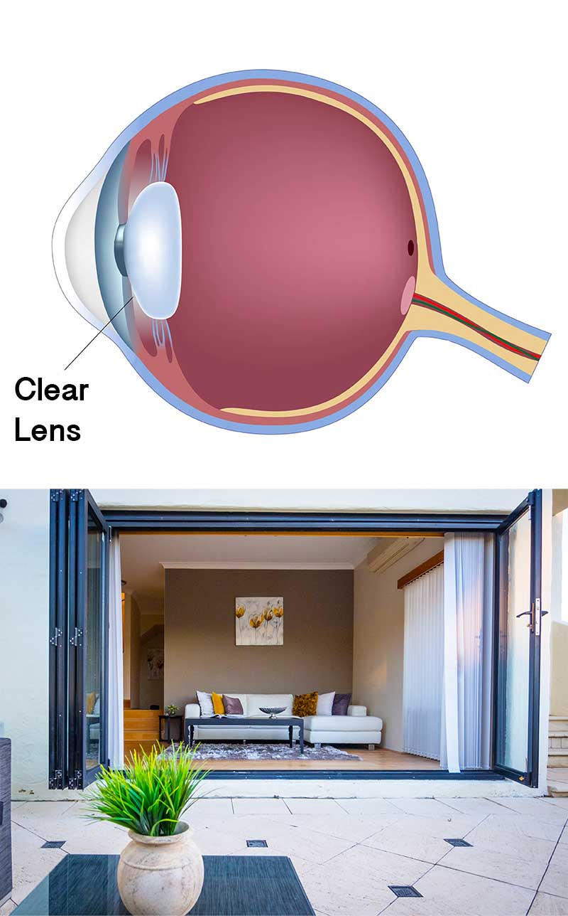 Clear lens vision small