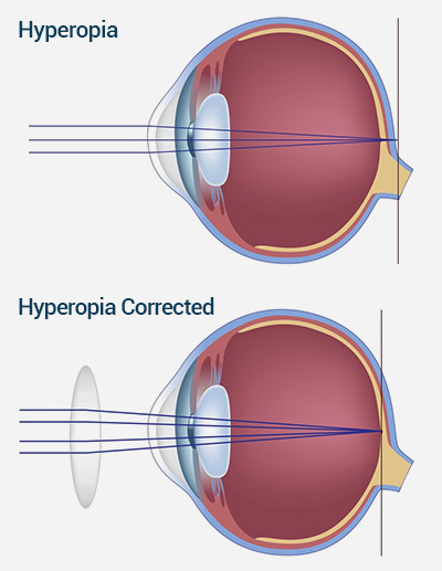 hyperopic vision - long sightness