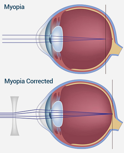 myopic vision - short sightness