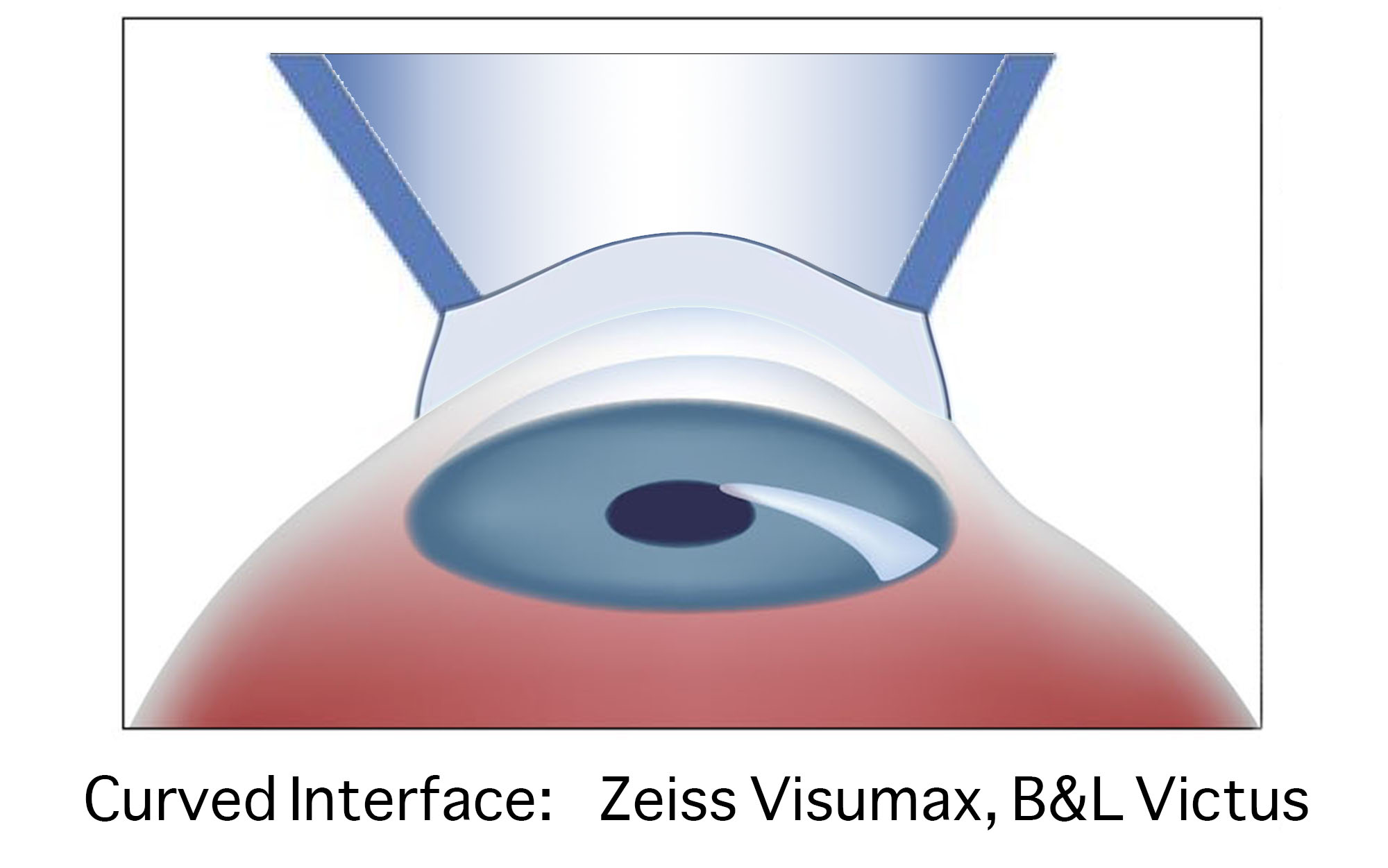 Curved patient interface on Zeiss Visumax femtosecond laser